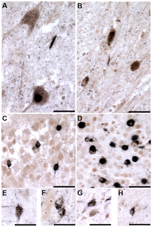 Tau tubulin kinases are co-expressed with phospho-TDP-43 pathology in ALS cases.TTBK1 (brown; A, C, E, F) and TTBK2 (brown; B, D, G, H) co-localize with phospho-TDP-43 (black) in spinal cord motor neurons (A, B), hippocampal dentate granule cells (C, D), cortical neurons (E, G), hippocampal CA3 pyramidal neurons (F) and subiculum (H). Scale bars = 50 µm.
