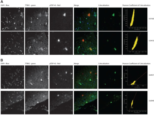 TTBK1/2 co-localize with phosphorylated TDP-43 in ALS spinal cord aggregates.Double-label immunofluorescence of ALS spinal cord of (A) TTBK1 and (B) TTBK2 show significant co-localization of TTBK1/2 with phospho-TDP-43 within neuronal cytoplasmic inclusions. Significance was determined using Pearson coefficient of colocalization.