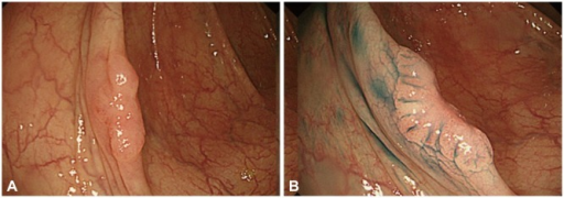 A superficial elevated flat neoplasm detected on white light endoscopy (A) and chromoendoscopy with indigo carmine (B).