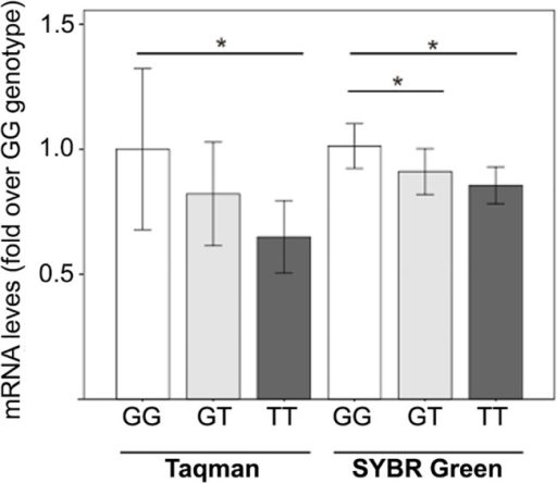RT-qPCR analysis of E2F2 gene expression in HD patients, according to E2F2 rs2742976 genotype.Two methods were used. In Taqman assay, the expression of E2F2 gene was analyzed in 31 samples (N TT = 4; N GT = 12, N GG = 15) with Hs00918089_m1 Taqman probe; the expression values were normalized respect to expression of B2M and YWHAZ reference genes. In SYBR Green assay, the E2F2 gene expression was estimated in 31 samples (NTT = 5; NGT = 14, NGG = 12); the expression values were normalized to expression of UBC and YWHAZ reference genes. Results are expressed as fold over respective GG individuals. Asterisk denotes statistically significant differences (P<0.05) between GG and any other group, according to DataAssist software analysis (T-test) or REST software analysis (Pair Wise Reallocation Randomization test).
