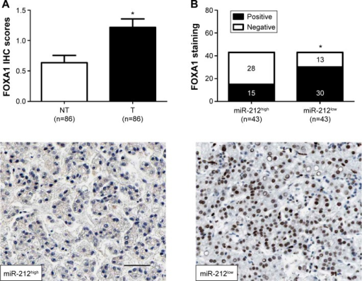 miR-212 is inversely correlated with FOXA1 in HCC.Notes: (A) Comparing differences in the expression levels of FOXA1 between HCC (T) and matched adjacent nontumor tissues (NT), *P<0.05. (B) Representative immunostaining showed negative expression of FOXA1 in miR-212 high-expressing HCC tissue and positive expression of FOXA1 in miR-212 low-expressing tumor. A significant inverse correlation between miR-212 and FOXA1 expression was observed in HCC tissues. Scale bar: 50 µm, *P<0.05.Abbreviations: FOXA1, forkhead box protein A1; HCC, hepatocellular carcinoma; IHC, immunohistochemistry; miR-212, microRNA 212.