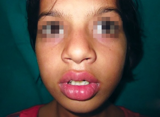 Extraoral examination showed a swelling on the left side of lip