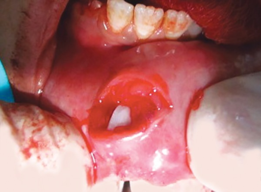 Embedded tooth fragment in lower lip