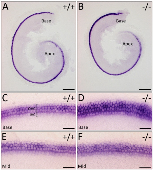 Cochlear hair cells fail to arrange into organised rows. (A,B) Low-power images of E16.5 cochlea showing ATOH1 expression. (C-F) High-power images of E16.5 cochlear hair cells showing normal expression of ATOH1 in WHSC1−/− mice but failure to arrange into organised rows. Scale bars: 200 μm (A,B); 25 μm (C-F). OHC, outer hair cell; IHC, inner hair cell.