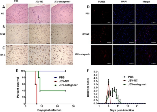 Antagomir-19b-3p treatment reduces neuroinflammation and improves the survival rate in JEV-infected mice. (A) Antagomir-19b-3p treatment ameliorates histopathological changes in JEV-infected mice. H&E staining of brain sections was performed to examine the pathological changes. Scale bar, 100 μm. (B and C) Antagomir-19b-3p treatment reduces astrocytosis and microgliosis. Sections of brain were analyzed by IHC staining. (B) Activation of astrocytes was detected by anti-GFAP antibody (B). Activation of microglia was detected by anti-IBA-1 antibody (C). Scale bar, 50 μm. (D) Antagomir-19b-3p treatment decreases neuronal cell damage. The apoptotic cells in the brain sections were stained using a TUNEL assay kit. Scale bar, 100 μm. The figures are a representative of three mice with similar results. (E) Antagomir-19b-3p treatment improves the survival rate. Survival of mice in each group was recorded for 25 days after JEV infection (100 PFU/mice) intracranially. Data were collected and are shown as Kaplan-Meier survival curves (n = 5 for each group). (F) Behavior score chart showing the gradual alleviation of suffering following JEV infection. Behavior scoring is as follows: 0, no restriction of movement, no frequent blinking, no body stiffening, no hind limb paralysis; 1, no restriction of movement, frequent blinking, no body stiffening, no hind limb paralysis; 2, restriction of movement, frequent blinking, no body stiffening, no hind limb paralysis; 3, restriction of movement, body stiffening, no hind limb paralysis; 4, restriction of movement, closed eyes, body stiffening, hind limb paralysis, body tremors.