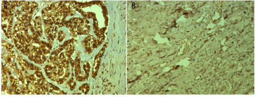 Immunohistochemistry analysis of IL-6 expression. (A) Positive expression of IL-6 in cervical cancer tissues. (B) Negative expression of IL-6 in normal tissues. Original magnification: ×200.