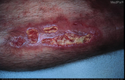 CUTANEOUS / METASTATIC CROHN'S DISEASE