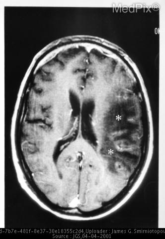 PML (Progressive Multifocal Leukoencephalopathy)