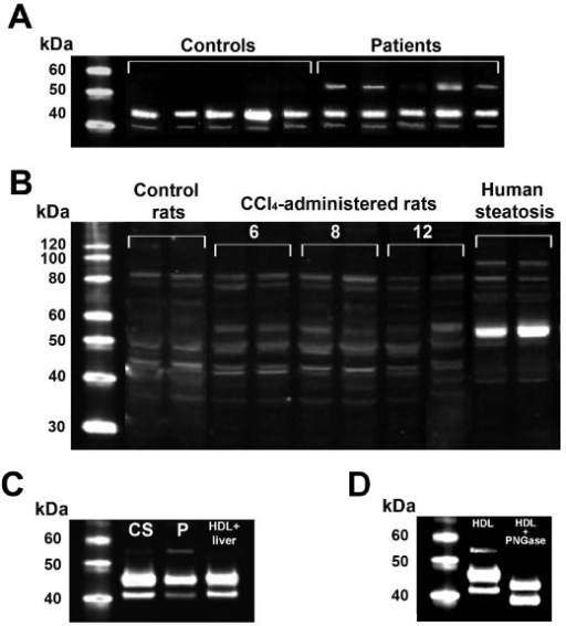(A) Western blot analysis of HDL particles in control subjects and patients with liver cirrhosis. HDL from the patients had an immunoreactive band (very light in the case #3) of about 55 kDa. (B) Western blot analysis of liver homogenates from control rats, CCl4-administered rats over a period of 6, 8 and 12 weeks, and liver biopsy samples from human patients with liver steatosis. A band at the relative molecular weight of 55 kDa increased progressively over the time-course of CCl4 administration. A similar, very intense band was observed in patients with steatosis. (C) Western blot analysis of HDL particles from a control subject (CS), a patient with cirrhosis (P), and normal HDL incubated in vitro with a liver homogenate from a patient with steatosis. (D) Western blot analysis of HDL particles from a patient with liver cirrhosis, with and without pre-incubated with PNGase F.