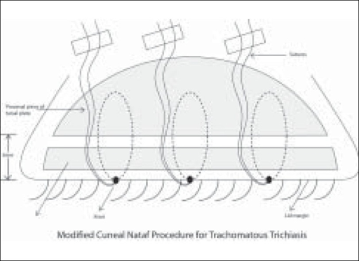 Modified Cuenod Nataf lid surgery procedure for trachomatous trichiasis in Vietnam (Schematic)