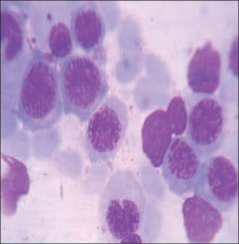Bone marrow showing megaloblasts, with royal blue cytoplasm and sieve-like chromatin (Leishman, ×1000)igure 1: Peripheral smear showing macrocytic anemia with hypersegmented neutrophils (Leishman, ×1000)