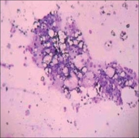 Bone marrow showing hypocellularity with increased fat and reactive lymphoplasmacytosis (Leishman, ×100)