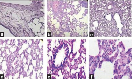 Effect of AESAq on histopathologic evaluation of lung tissue. Light micrograph of rat lungs collected from different treatment groups and the lungs were fixed in formalin and embedded in paraffin wax. Sections of lung tissue were cut at 5 μm thickness, mounted on glass slides and stained with hematoxylin and eosin (H × E) and cells were identified as either eosinophils, neutrophils or mononuclear cells by standard morphology and 200 cells counted under 400× magnification. a) NS - Absence of inflammatory cells, no edema in the lung tissue (25×). b) S- A low magnification lung section from an antigen-challenged animal showing evidence of Fluid accumulation along with inflammatory cells, blood cells, edema. c) A low magnification lung section from an antigenchallenged animal, received (Std.) Dexamethasone (1mg/kg, i.p.) showing absence of fluid accumulation around the blood vessel. d) A lung section from an antigen-challenged animal showing massive recruitment of eosinophils around the airway, blood vessels and bronchoconstuction, received AESAq100 (25×). e) A lung section from an antigen-challenged animal showing bronchodilation and blood vessels eosinophils around the airway, received AESAq200 (25×). f) A lung section from an antigenchallenged animal showing partial resolution of the tissue eosinophils around the airway and bronchodilation, received AESAq400