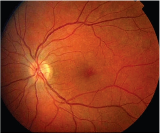 Fundus Image Of The Left Eye In A Patient With Mewds  T