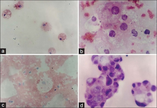 (a) Renal cyst: Cytospin preparation of aspirated fluid showing numerous macrophages in a clear background (H and E,×250); (b) Renal cell carcinoma: Large cells with abundant vacuolated cytoplasm and atypical nuclei against a hemorrhagic background (H and E, ×500); (c) Adrenal cyst: Hemorrhagic aspirate with foamy macrophages (H and E, ×250); (d) Adrenal adenocarcinoma: Papillary clusters of malignant cells with eosinophilic, vacuolated cytoplasm and overlapping, hyperchromatic nuclei with coarse chromatin (H and E, ×500)