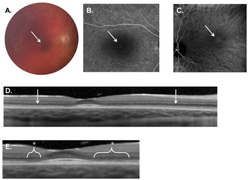 Weill Cornell LINCL Ophthalmic Severity Score 2.A. Dilated fundus photograph of Patient 10 reveals subtle pigmentary changes in the fovea (arrow). The optic nerve and vessels appearing normal. B. Late-phase FA and C. ICGA of Patient 17 shows a faint area of central hyper-fluorescence (arrow) surrounded by hypo-fluorescence. D. SD-OCT of patient 10 demonstrates normal retinal architecture outside the fovea (arrows). E. Enlargement of the fovea and para-foveal regions of the same OCT exposes outer retinal abnormalities including the disruption of the ellipsoid hyper-reflective band (*). The external limiting membrane, however, appears intact. FA – fluorescein angiogram, ICGA - indocyanine green angiogram, SD-OCT – spectral domain optical coherence tomography.