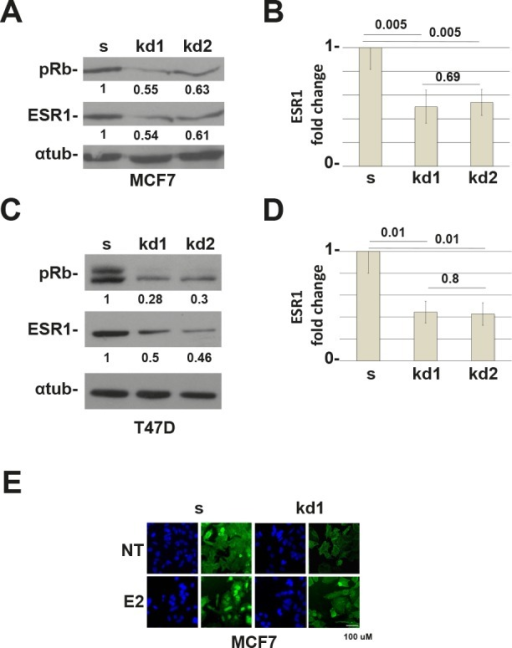 RB1 kd MCF7 and T47D cells down regulate the ESR1 protein(A) ESR1 expression in RB1 knocked down MCF7 cells. kd1 and kd2 represent two different shRNAs. Alpha-tubulin was used as a loading control. (B) Quantification of three independent experiments as in (A). y axis represents the ratio between the ESR1 and alpha-tubulin proteins and normalized to scrambled cells. The RB1 knocked down MCF7 cells express about 50% less of the ESR1 protein. (C) ESR1 expression in RB1 knock down T47D cells. (D) Quantification of three independent experiments as in (b). The RB1 knock down T47D cells express about 56% less of the ESR1 protein. (E) MCF7 cells were grown in CSS medium for 3 days (NT) and treated with 10−8 estradiol for 45 minutes (E2). Cells were probed with an ESR1 antibody (green) and stained with DAPI (blue). RB1 kd1 cells express less ESR1 protein.