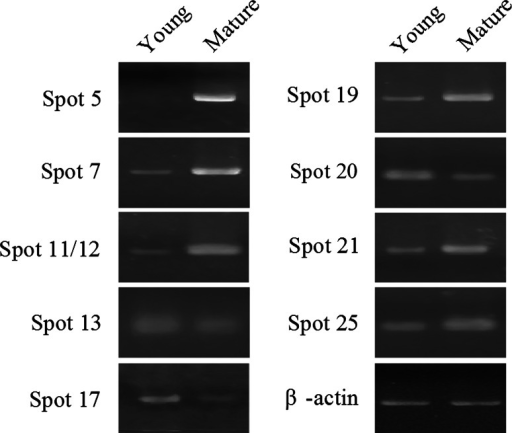 Semi-quantitative RT-PCR analysis of genes differentially expressed in young and mature leaves. The products of RT-PCR were separated on 1.2 % agarose gel. Spot 5, oxygen evolving enhancer protein 2; Spot 7, fructose-bisphosphate aldolase; Spot 11/12, Rubisco activase; Spot 13, nucleoside diphosphate kinase; Spot 17, elongation factor-1 α subunit; Spot 19, granule bound starch synthase; Spot 20, cyclophilin; Spot 21, carbonic anhydrase; Spot 25, phosphoribulokinase. The β-actin gene was used as an internal control
