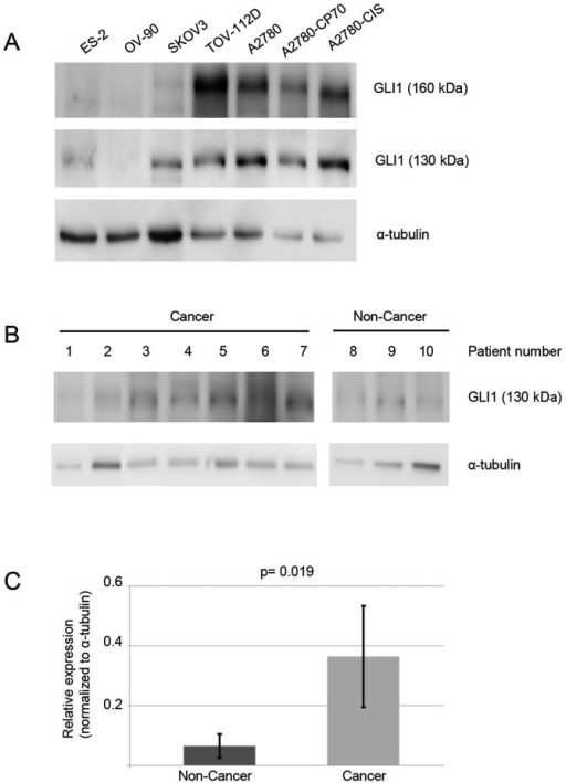 The 130-kDa isoform of GLI1 is present in human ovary cancer specimens. (A) Seven human ovarian cancer cell lines were screened by western blotting for the presence of full-length GLI1 (160 kDa) and the 130-kDa GLI1 isoform. In all cell lines analyzed, the 130-kDa isoform of GLI1 was present. (B) Ten human ovarian specimens, seven cancer and three non-cancer, were assayed by western blotting. In all samples, the 130-kDa isoform of GLI1 was observed. (C) Graphic results of quantification of the 130-kDa protein in patient samples. Protein levels were 6-fold higher in malignant tissues.