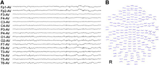 (A) Interictal. electroencephalograhy (EEG) EEG spikes are visible in the right temporal area. (B) Waveforms of MEG spikes recorded in all 204 channels. The MEG spikes appear in the right temporal area.