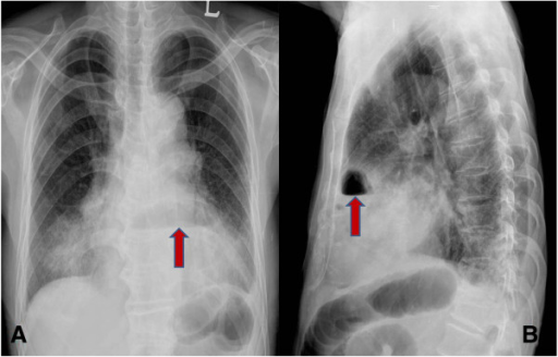 Preoperative chest radiograph. A: Chest PA shows an abnormal air shadow above the diaphragm (arrow). B: Chest lateral view shows an abnormal air shadow under the sternum.