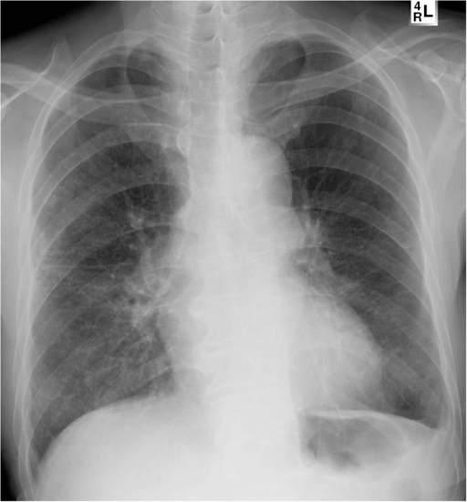 Postoperative chest x-ray. Abnormal air shadows observed preoperatively were not seen.