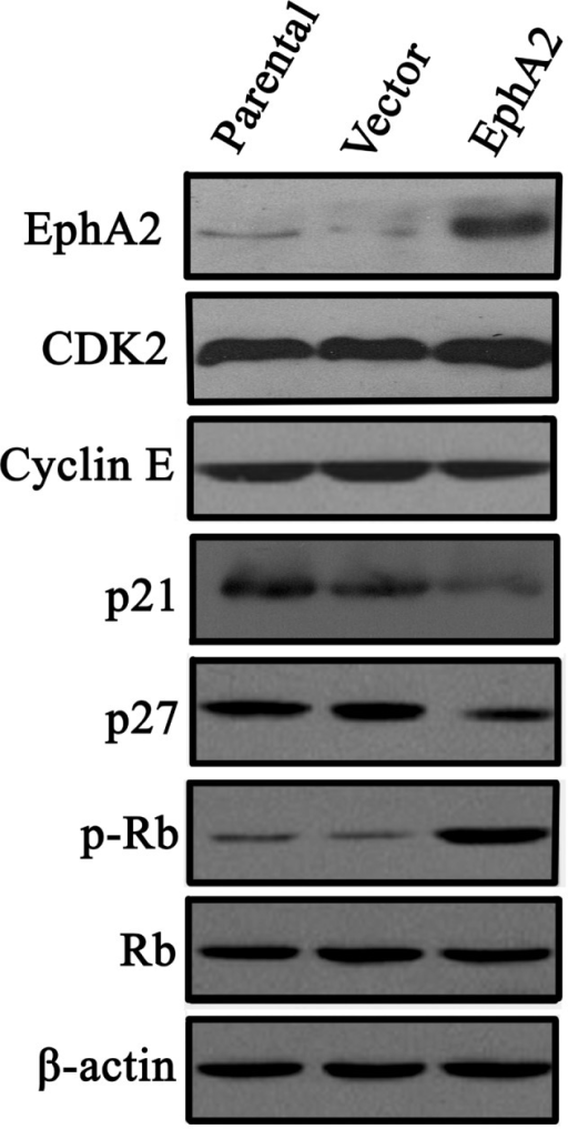 Effect of EphA2 over-expression on cyclin-dependent kinase inhibitors, p21Cip1 and p27Kip1, in NPC 5-8F cells. Western blot analysis was used to detect the expression of p21Cip1, p27Kip1 CDK2, Cyclin E and p-Rb in NPC 5-8F and CNE-2 nasopharyngeal carcinoma cells. All data were obtained by three independent experiments, which produced similar results. EphA2, ephrin type-A receptor 2; CDK, cyclin-dependent kinase; Rb, retinoblastoma protein; p-Rb, phosphorylated Rb; NPC, nasopharyngeal carcinoma.