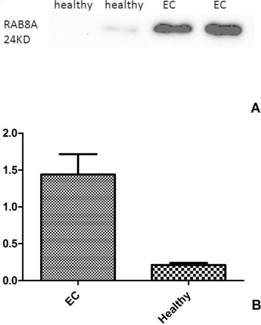 The expression ofRAB8Ain healthy and malignant endometrium tissues (A, B). A significant increase of RAB8A in EC versus the healthy controls was observed by Western blot analysis (P <0.05). (A) the image of Western-blot in EC and healthy tissues; (B) Analysis of the Western-blot image results in EC and healthy tissues. EC endometrial cancer.