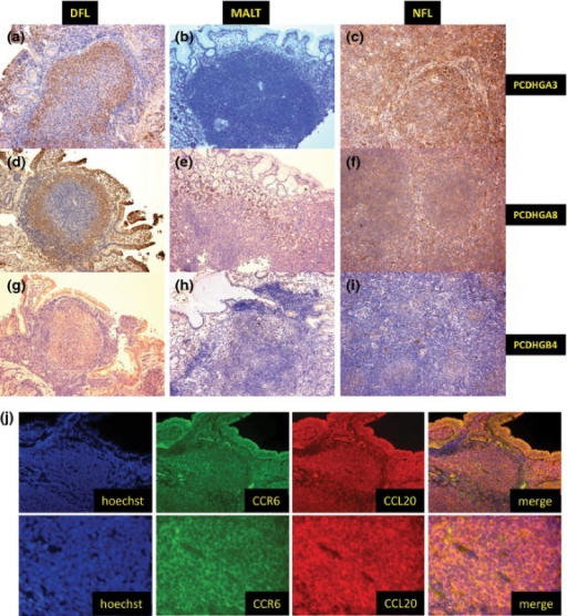 Validation of microarray data and double immunohistochemical staining for CCL20 and CCR6. (a–i) Immunohistochemical results for PCDHGA3, PCDHGA8 and PCDHGB4. Duodenal follicular lymphoma (DFL) and nodal follicular lymphoma (NFL) were positive for PCDHGA3 (a) and (c), PCDHGA8 (d) and (f), and PCDHGB4 (g) and (i), while MALT was negative for all three markers (b), (e) and (h). (j) Double immunohistochemical staining for CCL20 and CCR6 in DFL. Tumor cells co-expressed CCL20 and CCR6.