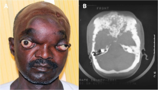 A: Showing massive head actinomycetoma with severe bilateral proptosis.This patient had vision loss in the right eye, and loss of hearing in both ears due massive intra-cranial involvement. B: Skull CT scan showing massive intracranial actinomycetoma involvement with bones destruction. The patient agreed to show his photos for publication purpose.
