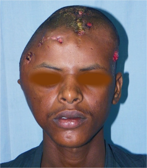 Showing massive head actinomycetoma with multiple sinuses.The patient agreed to show his photos for publication purpose.