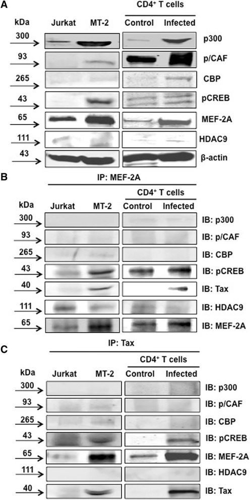 MEF-2 physically interacts with Tax. (A) Control (Jurkat), infected (MT-2) cell lines, control primary CD4+ T cells and HTLV-infected primary CD4+ T cells were lysed, sonicated and protein concentration was determined by Bradford assay. Equal protein quantities were then resolved by SDS-PAGE and transferred to PVDF membrane. Following a 1 hr block membranes were incubated with antibodies against the transcription factors. Western blot shows the expression of transcription factors in control and infected cell lines and primary cells. (B) MEF-2 complex formation with Tax and transcription factors was analyzed using an immunoprecipitation assay. Cells were lysed using an immunoprecipitation lysis buffer and then incubated with MEF-2 antibody overnight at 4°C as described in Methods. Western immunoblot analysis was performed to confirm immunoprecipitation. (C) Control and infected cell lines and primary cells were enriched for Tax and immunoblotted to determine complex formation with MEF-2 and transcription factors. Data is representative of multiple individual experiments.