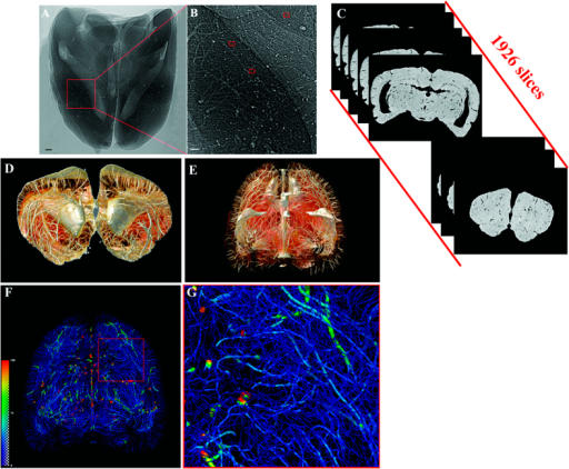 Illustration of hierarchical image processing.(A) Projection of rat brain by SR-PCI. (B) Local magnification of the region of interest denoted by a red box in (A). The small red frame in (B) indicates vessels with diameter of approximately 10 μm. (C) Series of 2D reconstructed slices using projections with image optimization. (D) 3D local tomography of angioarchitecture via superimposition of slices. (E) 3D reconstructed image of cerebral vasculature. (F) 3D skeleton of vascular network (in pseudocolour), with the region of interest denoted by a red frame. This area is shown with higher magnification in (G). The color gradients reflects vessel diameters, ranging from 10 μm (dark blue) to 150 μm (red). Scale bars: 200 μm (A,B).