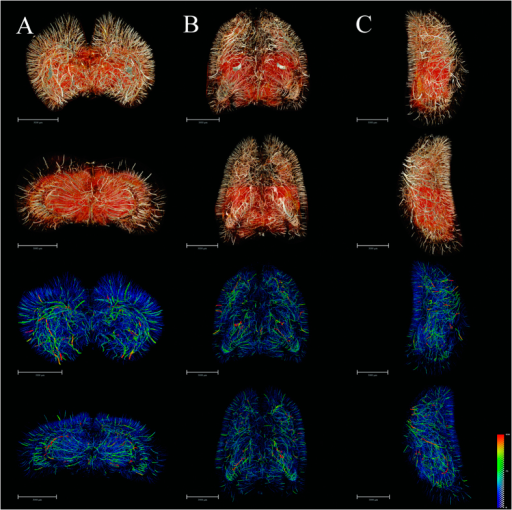 3D tomography of cerebral angioarchitecture in the three planes.(A) Rostral (top) and caudal (upper-middle) views of vascular mapping. 3D corresponding skeletonization in rostral (lower-middle) and caudal (bottom) views. Pseudo-colored enhanced effects represent the distributional range of the vessel diameter spectrum. (B) Dorsal (top) and ventral (upper-middle) views of vascular mapping. 3D corresponding skeletonization in dosal (lower-middle) and ventral (bottom) views. (C) Lateral right and lateral left views of vascular mapping. 3D corresponding skeletonization in lateral right (lower-middle) and lateral left (bottom) views. The pseudocolor bar in the lower-right corner of C panel indicates the diameter ranges of vascular trees in the whole brain. Scale bars: 3000 μm (A–C).