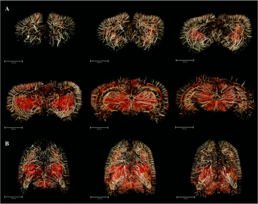 3D digitalized angioarchitectural map.(A) A series of mapping from frontal pole to the upper midbrain, which were separately reconstructed in 3D using a stack of 100 coronal slices (total thickness of 592 μm). The cerebral ventricles were removed to delicately describe the panorama of vascular architectonic features. (B) Overviews of the whole-brain maps in the 3D-reconstructed horizontal planes from 200 serial slice-by-slice rendering respectively. Scale bars: 2000 μm (A), 3000 μm (B).