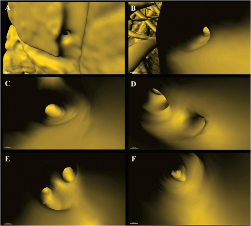 Virtual micro-endoscopy to 3D track targeted vessel.(A) Initiation to orientate a vessel. Successive pathway tracing shown in (B) to (F). The endovascular micro-structure is clearly discernible. Scale bars: 100 μm.