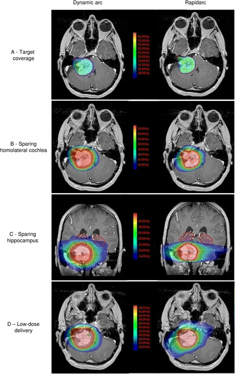 Example of the dose distribution of a patient with a large skull base tumor with non-coplanar dynamic arcs (left) and VMAT (RapidArc®) (right). a) Comparison for target coverage. b) Comparison for sparing ipsilateral cochlea. c) Comparison for sparing hippocampus. d) Comparison for low-dose irradiation