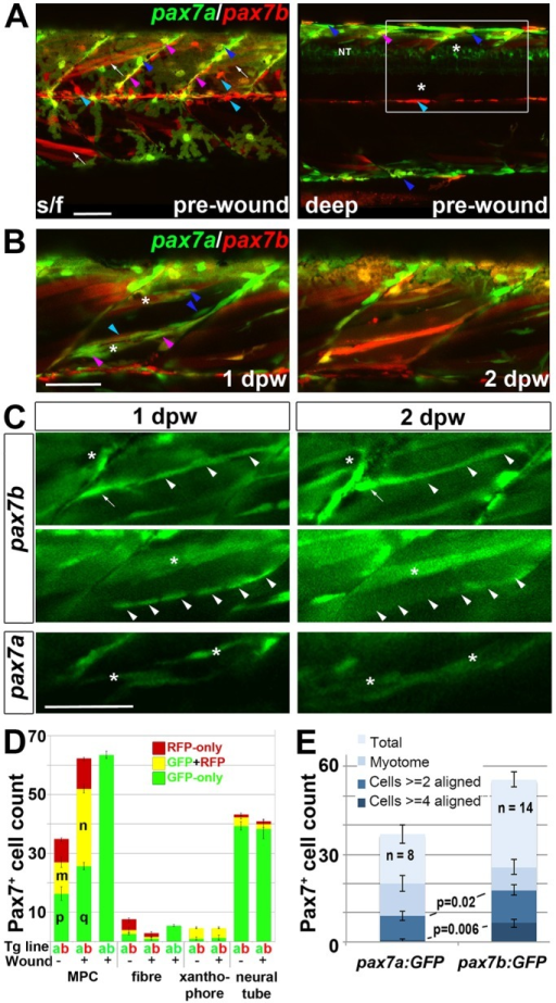 Fusion of pax7a- and pax7b-reporter cells during wound repair. (A-C) Lateral confocal maximum intensity projection stacks of pre-wounded (A) and wounded (B,C) yolk extension somites of pax7a:GFP;pax7b:gal4;UAS:RFP (A,B) or single pax7a/b:GFP (C) larvae, anterior to left, dorsal to top. Scale bars: 50 µm. (A) At 3 dpf, pax7b:RFP fibres (white arrows) and presumptive mononucleate cells (cyan arrowheads) are present superficially (s/f) within the somite and differ from pax7a:GFP cells (blue arrowheads). Dual-labelled somite cells (magenta arrowheads) concentrate on VMZ. Note the lack of Pax7 cells in the deep myotome at this stage. The pax7b-reporter labelled cells strongly in somites, and also weakly in dorsal neural tube (NT). (B) Short stack of epaxial wounded region shown by white box in A with two small wounds (asterisks). At 1 dpw, pax7a:GFP;pax7b:RFP cells elongate in wound. By 2 dpw, time-lapse reveals several nascent fibres marked strongly by RFP and weakly by GFP. See Fig. S9 for separate monochrome images. (C) Time-lapse of pax7b:gal4;UAS:GFP reporter marks aligned cells (arrowheads) that form fibres (top) or disappear (centre). pax7a:GFP cells are frequently aligned with fibres, but more rarely assemble in rows. pax7a:GFP cells occasionally matured into nascent fibres (bottom). Asterisks mark the same cells at each time point. Note the stronger mononucleate cells and more abundant fibre labelling by the pax7b:GFP reporter, compared with the pax7b:RFP reporter in panel B. Arrow indicates a separate cell. (D) Counts of numbers (mean±s.e.m.) of red, green and dual-labelled cells in a single epaxial somite (or corresponding length of neural tube) by cell type in larvae transgenic (Tg) for pax7a:GFP (a, green), pax7b:GFP (b, green) or pax7b:RFP (b, red) as indicated by the Tg line letter code and colour. Larvae with (+) or without (−) a wound made at 3 dpf were analysed 1 dpw, at 4 dpf. Note the increase in labelled MPCs, decrease in fibres and constant number of xanthophores and neurons in wounded somites at 1 dpw. Letter groups (m,n,p,q) indicate difference at P<0.05 (t-test, n=3). (E) At 1 dpw, despite a similar fraction of total cells in myotome, there were more pax7b:GFP reporter cells in rows of two (≥2) or four (≥4) or more aligned cells, compared with pax7a:GFP cells. Mean±s.e.m., P-values show Mann–Whitney test of differences in proportions of total cells.