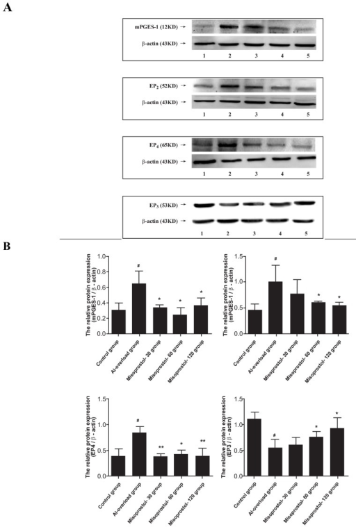 Effects of misoprostol on alterations of mPGES-1, EP2, EP4 and EP3 protein expression induced by aluminum overload in rat hippocampus. A: Lane 1-5 represents Control, Aluminum-overload, Misoprostol-30, Misoprostol-60 and Misoprostol-120, respectively. B: The relative protein level of mPGES-1, EP2, EP4 and EP3 was normalized to endogenous β-actin protein for each sample. #P<0.05 compared with Control group, *P<0.05 compared with Al-overload group (Data are expressed as mean ± SD. n=4).