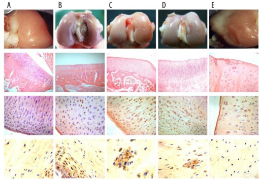 The images were visualized with macro-observation (first row), HE staining (second row), MMP-7 immunohistochemical staining (third row), and collagen type II immunohistochemical staining (fourth row) in PCL rupture side and the control side of the lateral femoral condyle. (A) the control side: continuous and smooth surface, chondrocytes in columnar shape and regularly ranged, even nuclear size and staining, mild deep staining in cytoplasm, continuous tidemark; weakly MMP-7 positive-staining expressed in superficial layer, few in cytoplasm; even collagen type II expression in ECM, few positive-staining cells, and almost no staining in cytoplasm; (B) 4th week after PCL rupture: smooth and approximately flat surface, chondrocytes regularly arranged, clear tissue layers, even HE staining, and continuous tidemark; MMP-7 positive-staining weakly expressed in surface, matrix, and cytoplasm, full oval-shaped nuclear, partly expressed in cytoplasm; uneven collagen type II positive-staining in matrix, partly expressed in cytoplasm; (C) 8th week after PCL rupture: slight rough surface, chondrocytes arranged disorderly, few gathered in clusters, unclear layers, uneven staining; MMP-7 strongly expressed in superficial layer, positive in matrix and cytoplasm, deeper than 4th week; more collagen type II positive-staining cells; (D) 16th week after PCL rupture: rough surface, chondrocytes arranged disorderly, more clusters, disorderly arrangement tissue layers; MMP-7 strongly expressed in superficial layer, matrix and cytoplasm, matrix partly degraded, cytomorphosis; more collagen type II positive-staining cells; (E) 24th week after PCL rupture: superficial layer fibrosis, cell number decreased obviously, layers disorderly arranged; decreased MMP-7 staining, especially in cytoplasm, matrix degradation, uneven cell size and shape; few collagen type II positive-staining cells.