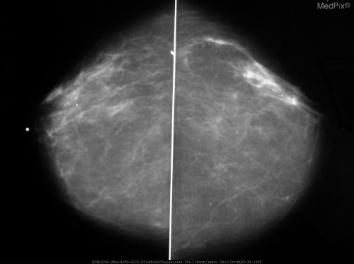 Bilateral initial screening CC and MLO views of the breasts, demonstrate scattered fibroglandular tissue elements, and a segmental distribution of branching microcalcifications in the upper-outer quadrant of the left breast.