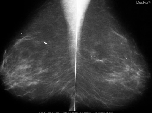 Bilateral initial screening MLO views of the breasts, demonstrate scattered fibroglandular tissue elements, and a segmental distribution of branching microcalcifications in the upper-outer quadrant of the left breast.  There is increased tissue density associated with the calcifications.