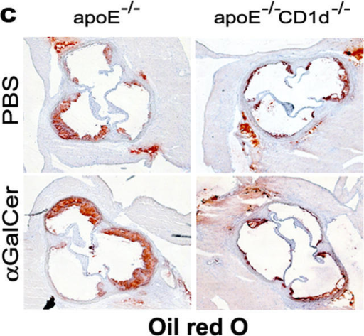 Effects of CD1d deficiency and αGalCer treatment on atherosclerosis. 5-wk-old female apoE−/− and apoE−/−CD1d−/− mice were injected twice a week for 10 wk with αGalCer or PBS and killed 48 h after the last injection (n = 12 for each group). (a) Mean lesion size in Oil Red O–stained aortic root sections. Mean ± SEM (***P < 0.001 versus apoE−/−-PBS and all apoE−/−CD1d−/−; §§P < 0.01 versus apoE−/−-PBS mice). (b) Lesion size at every 100 μm for the first 600 μm of the aortic root in apoE−/− and apoE−/−CD1d−/− mice. (c) Representative Oil Red O–stained cryosections of aortic roots (magnification ×50).