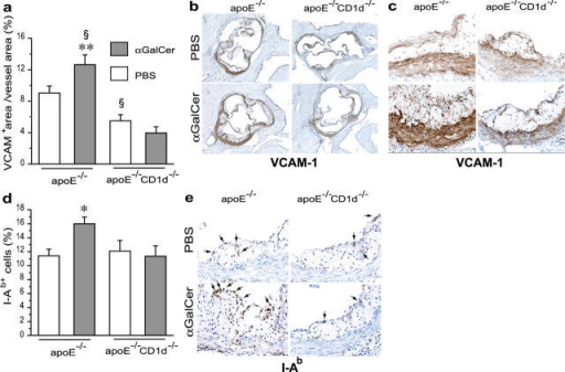 Effects of CD1d deficiency and αGalCer treatment on the expression of VCAM-1 and I-Ab in atherosclerotic lesions. Experimental groups were the same as in Fig. 1. (a) VCAM-1 quantitation (VCAM-1+ area/vessel area); (b and c) representative sections of aortic root stained for VCAM-1 by avidin-biotin-immunoperoxidase (brown) (×50 and ×400). (d) I-Ab quantitation (I-Ab+ cells/total hematoxylin+ cells) and (e) representative sections of aortic roots stained for I-Ab by avidin-biotin-immunoperoxidase (brown) (×400). Arrows point at I-Ab+ cells. Mean ± SEM (*P < 0.05 versus apoE−/− treated with PBS and versus all apoE−/−CD1d−/−; **P < 0.01 versus all apoE−/−CD1d−/− mice; §P < 0.05 versus apoE−/−-PBS).