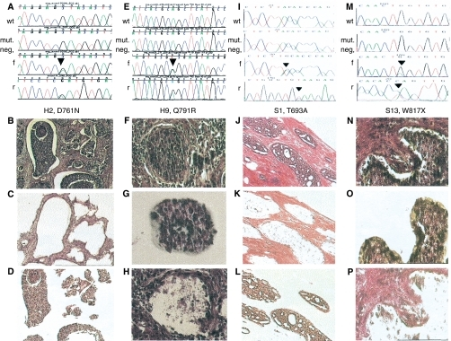 Somatic EGFR mutations in the epithelium or stroma of sporadic and hereditary breast carcinomas. Each of the four columns (A–D, E–H, I–L and M–P) represents one EGFR mutation-positive sample and the corresponding images taken during the LCM process. The sample codes corresponding to Table 1 are indicated below each set of chromatograms. Each set of chromatograms (A, E, I and M) shows the control (wild-type) sequence in the top row, followed by the sequence of the mutation-negative compartment. The heterozygous mutation and surrounding sequences are shown in forward (f) and reverse (r) directions in the bottom two rows. The first column shows sample H2, harbouring a somatic D761N mutation in the tumour epithelium (A, f and r) but not tumour stroma (mut. neg. in A). Image (B) shows an overview of this tumour (H&E, × 100 and × 200) and images (C) and (D) confirm that we accurately captured stroma (C) and epithelium (D). The second column shows the chromatograms (E) and tissue image (F) of sample H9, harbouring the somatic Q791R mutation in the stroma (f and r in (E)) but not epithelium (E, mut. neg.). The corresponding images (G) and (H) depict the captured epithelium (G) and the tissue image after extraction of the epithelial component by LCM (H). The third column represents the sporadic breast adenocarcinoma sample S1 (J) with a somatic T693A mutation in the stromal compartment (I, f and r) but not epithelium (mut. neg. in (I)). Again, images (K) and (L) verify the separation of tumour epithelium (L) and stroma (K). The last column shows sample S13 harbouring a W817X mutation in the tumour epithelium (M, f and r) but not stroma (M, mut. neg.). The neoplastic epithelium is microdissected (O) out of the whole tumour section (N), leaving the stromal compartment (P).