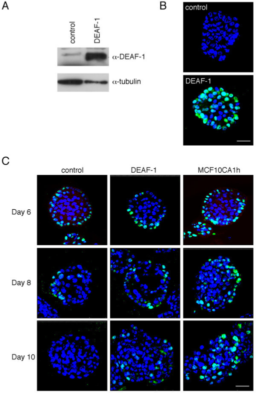Overexpression of DEAF-1 in MCF10A cells leads to enhanced cellular proliferation within acini. A) MCF10A-EcoR cells transduced with either a Deaf-1-expressing or empty pBabe-puro retrovirus were analyzed by western blotting of whole cell lysates using anti-DEAF-1 polyclonal antisera. Blotting for tubulin provided a loading control. B) Control or Deaf-1 expressing MCF10-EcoR cells were plated at 4,000 cells/well in eight-well glass chamber slides. Wells were pre-coated with Matrigel and the final culture medium contained 20 ng/ml EGF and 2% Matrigel. Acini were fixed in 2% paraformaldehyde after 8 days in culture, immunostained with anti-DEAF-1 (green), counterstained with DAPI (blue) and acini visualized by confocal microscopy (DAPI = uv; and DEAF-1 = 488 nm). Scale bar represents 47.6 μm. C) Transduced acini were grown as in B) from control MCF10A-EcoR cells, DEAF-1-transduced-MCF10A cells, and malignant MCF10CA1h cells. Cells were fixed in 2% PFA after 6, 8 and 10 days in culture. Acini were immunostained with anti-Ki67 (green) and counterstained with DAPI (blue) following 6, 8 and 10 days in culture. At least three independent experiments were performed. Acini were visualized with a confocal microscope (DAPI = uv; and Ki67 = 488 nm). Scale bar represents 47.6 μm.
