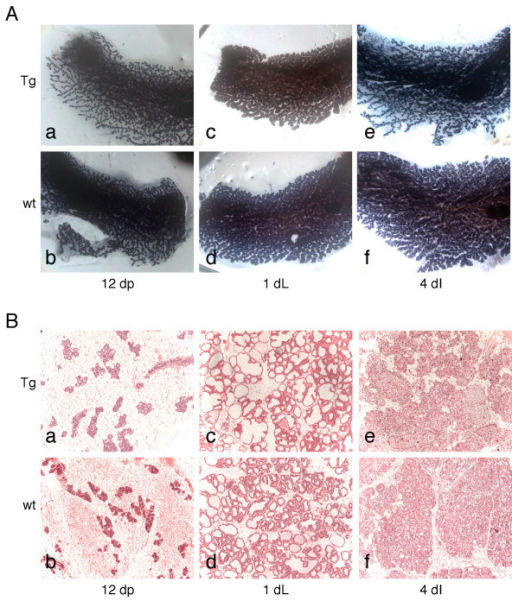 No phenotype is evident in Deaf-1 transgenic mice during pregnancy, lactation and involution. A) Wholemounts of inguinal mammary glands from Deaf-1 transgenic (a, c and e) or FVB/N wild-type mice (b, d and f). Whole-mounted glands at different time-points: 12 days of pregnancy (12 dP; a and b), 1 day of lactation (1 dL; c and d) and 4 days of involution (4 dI; e and f). Original magnification ×7.5. B) Sections of glands from Deaf-1 transgenic (a, c and e) and FVB/N wild-type mice (b, d and f) at 12 days of pregnancy (12 dP; a and b), 1 day of lactation (1 dL; c and d) and 4 days of involution (4 dI; e and f). Original magnification ×100. Tg, transgenic; wt, wild-type.