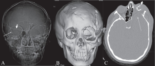 bare orbit sign. frontal ct scan scannogram of the head | open-i, Human Body
