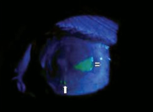 At two weeks follow-up, Cobalt blue light examination reveals almost 90% epithelial healing with small epithelial defect at three o′ clock, staining with fluorescein (double white arrows) and two loose sutures at six o′ clock (single white arrow).