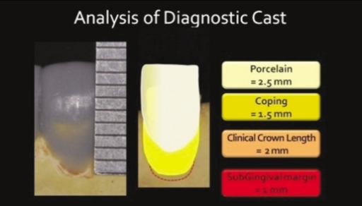 Analysis of diagnostic cast. Determination of the length of surgical crown lengthening.